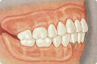 problemes musculaires et dents manquantes pdf